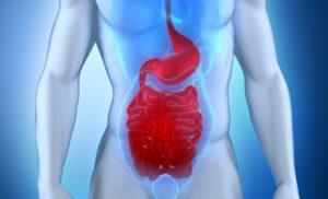 Что такое грыжа кишечника