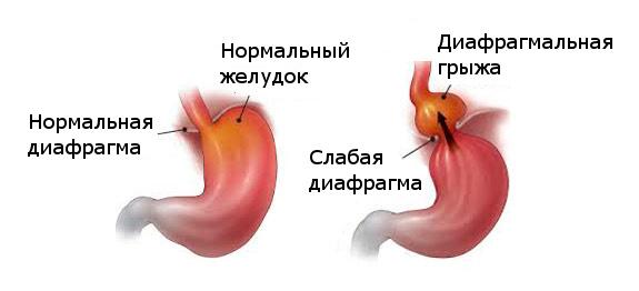 Хитальная грыжа желудка