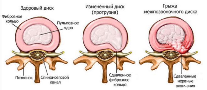 Виды патологий межпозвоночных дисков