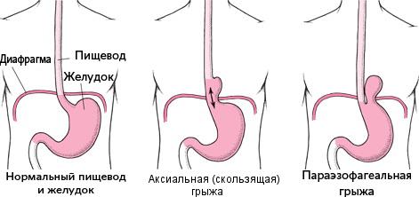 Грыжа пищеводного отверстия диафрагмы лечение без операции