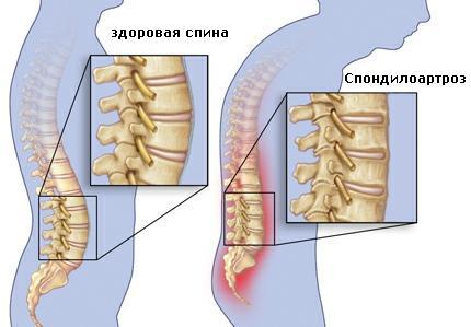 Spondylarthrosis
