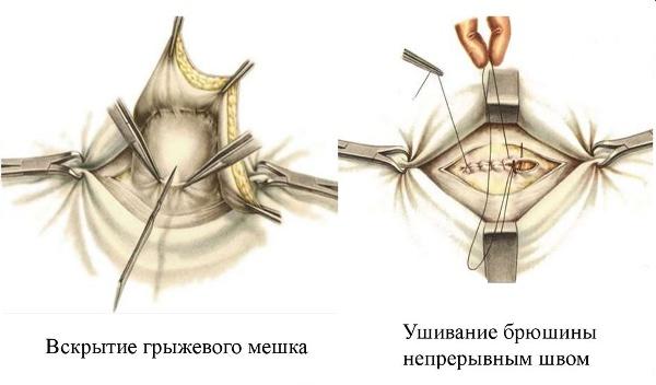 Фото живота после операции по удалению пупочной грыжи