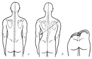Диагностика сколиоза