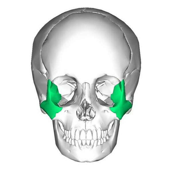 Перелом скуловой кости - лечение болезни. Симптомы и профилактика заболевания Перелом скуловой кости