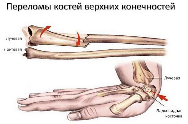 Причины переломов