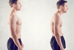 Кифоз грудного отдела позвоночника - симптомы, степени и лечение, фото и видео