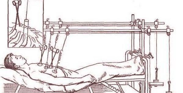 Лечение переломов ребер