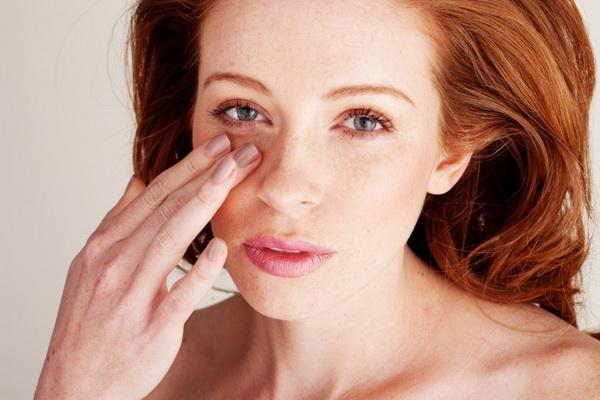 Гематома на лице