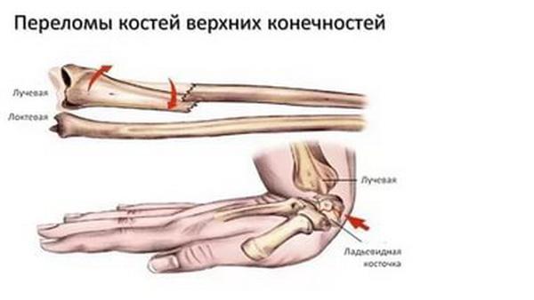 Причины переломов предплечья