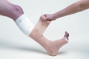 Синдром Зудека после перелома лучевой кости: симптомы, лечение ...