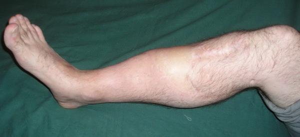 Причины возникновения ложных суставов разработка локтевого сустава после операции питер