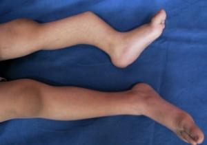 Причины ложного сустава