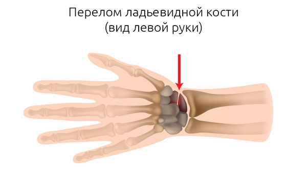 Перелом кости