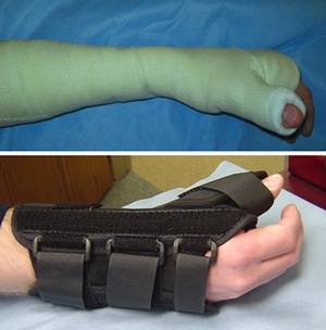 Лечение повреждения ладьевидной кости