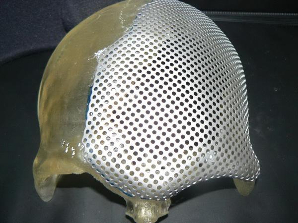 Пластины для черепа