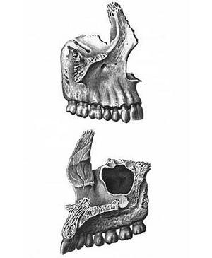 Строение челюсти