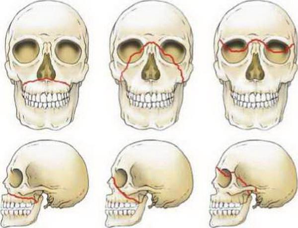 Виды переломов верхней челюсти