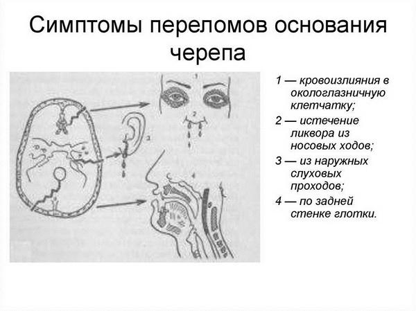 Симптомы повреждения
