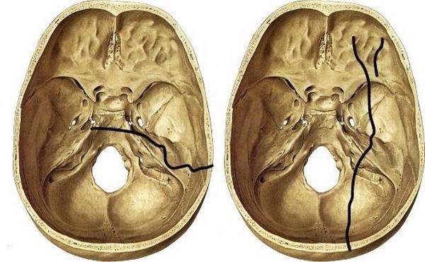 Виды переломов основания черепа
