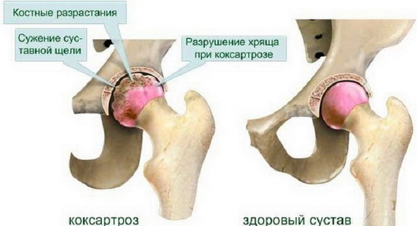 Последствия травмы