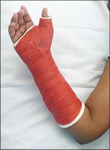 Лечение перелома