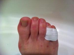 Перелом маленькой фаланги пальца