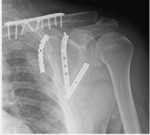 Рентгенограмма после операции на лопатке и ключице