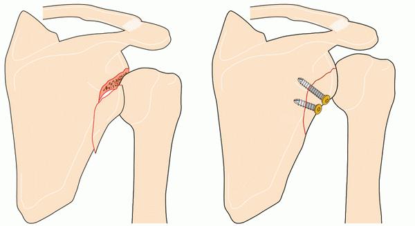 Повреждение до операции и после