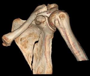 Перелом тела лопатки