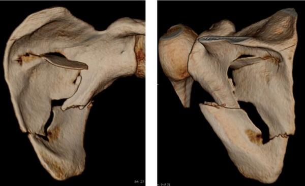 Многооскольчатый перелом тела лопатки