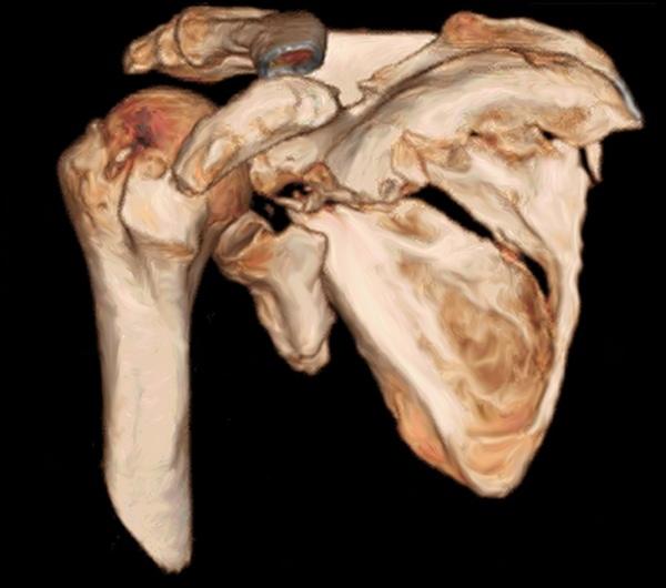 Многооскольчатое повреждение тела лопатки и нижнего края суставной впадины