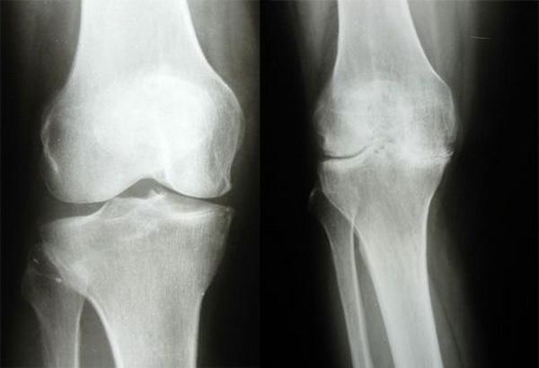 Рентген колена
