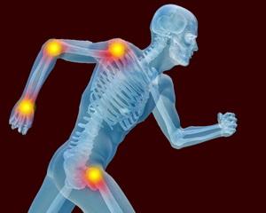 Причины артроза и артрита