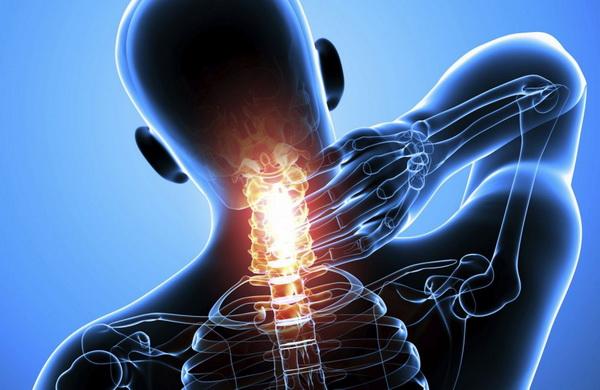 Унковертебральный артроз шеи
