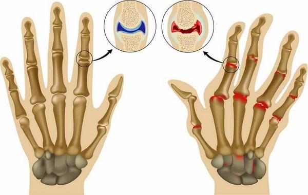 Стадии артрита пальцев рук