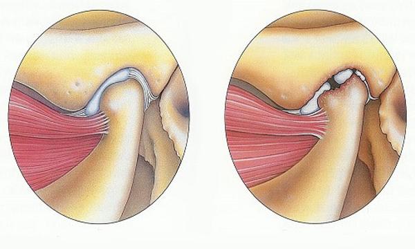 Артрит челюстно-лицевого сустава