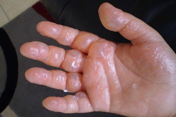 Ожог растительным маслом: симптомы, первая помощь, лечение
