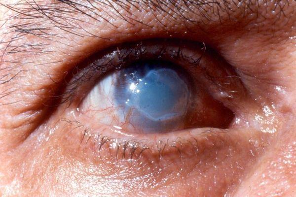 Ожог роговицы глаза: виды, симптомы, первая помощь и лечение