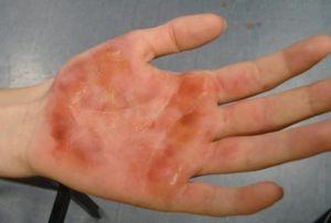 Химический ожог кожи: симптомы, первая помощь, лечение