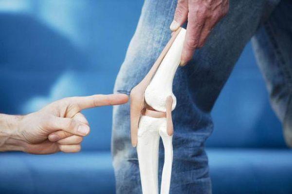 Пателлофеморальный артроз: причины, симптомы, методы лечения