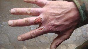 Как лечить кожу после волдыря после ожога