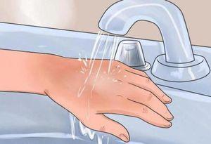 Неотложная помощь при ожоге водой