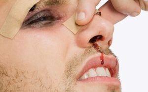Ожог слизистой носа у младенца