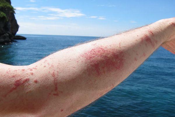 Ожог от медузы: симптомы и последствия, первая помощь, лечение