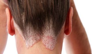 Лечение кожи головы после окрашивания в домашних условиях