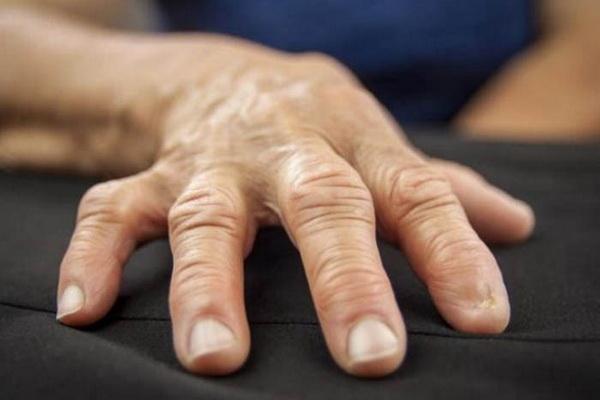 Артрит пальцев рук: виды, причины, симптомы и методы лечения