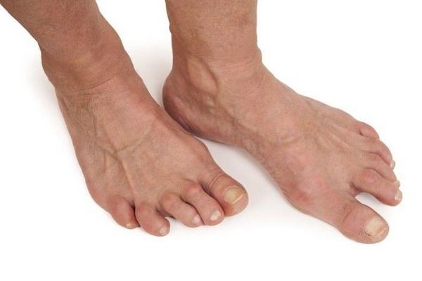 Артроз пальцев ног: как распознать заболевание