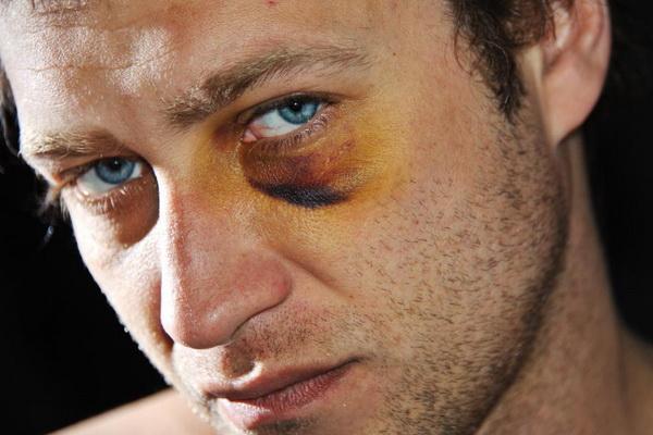 Как быстро избавиться от синяка под глазом
