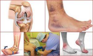 Посттравматический артроз: причины, виды, симптомы и лечение