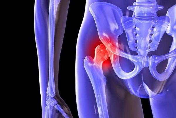 Коксартроз тазобедренного сустава: основные симптомы и способы лечения